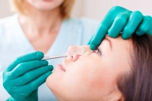 Rinoplastia Brasilia - cirurgia plastica nariz